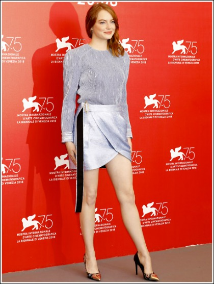 Emma Stone Gets Ultra Leggy In A Short Skirt' WOW!